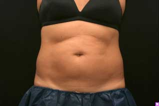 Before Abdominal Fat Reduction