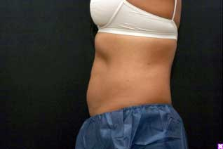 After Abdominal Fat Reduction
